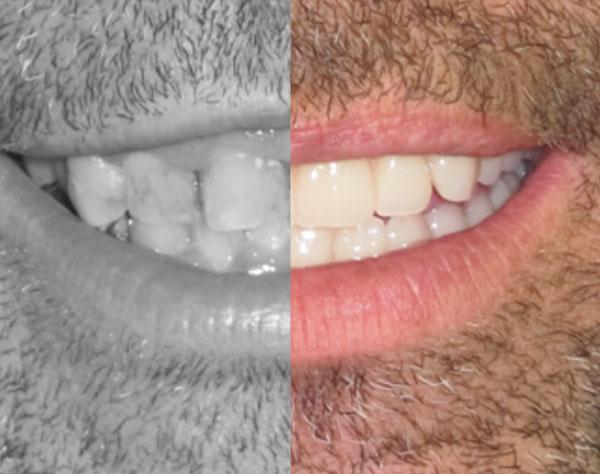 Immidiate dentures