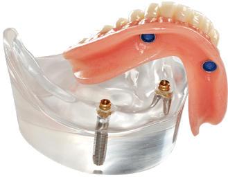 Dental Implant secured denture