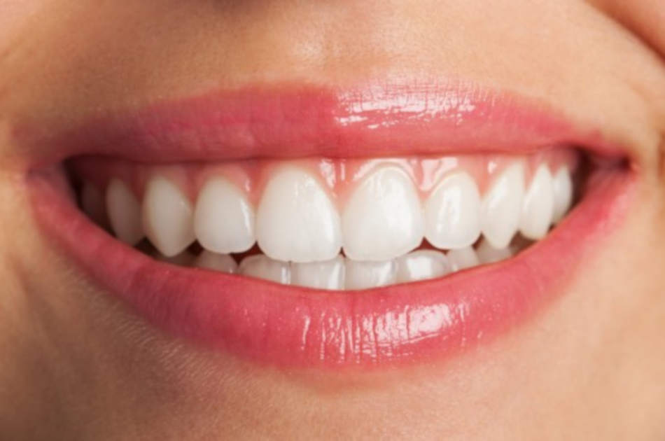 Smile with immediate dentures