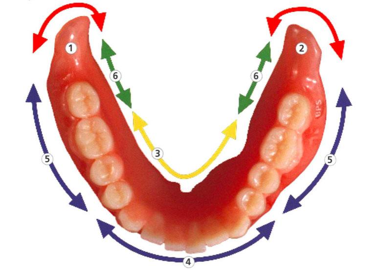 Dr. Abe denture technique